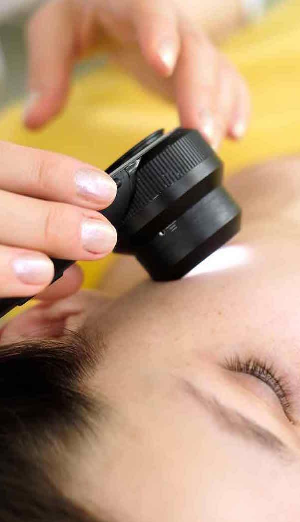 Dermatology, Mole Checks & Skin Cancer